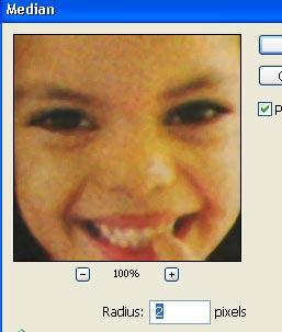 Al aplicar el comando median la imagen se suaviza.